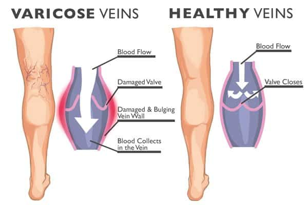 Heredity – Are you doomed to a life with varicose veins?