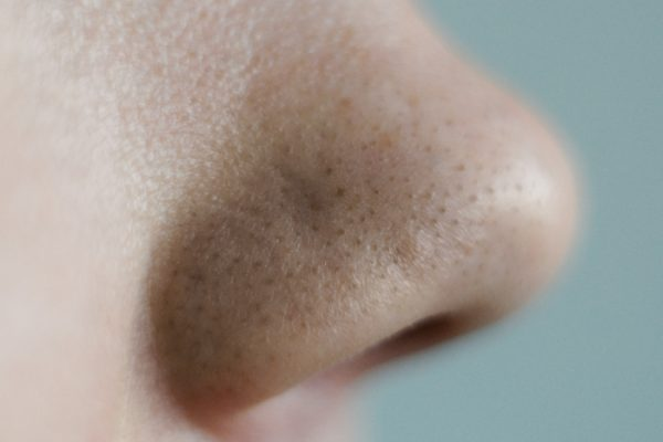 nose with blackheads - depositphotos