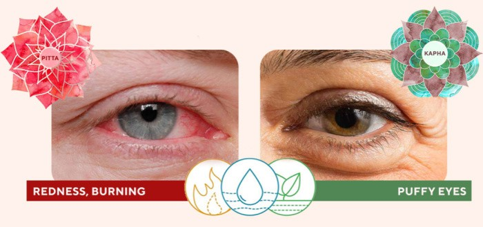 Ayurveda Solutions for Puffy Eyes